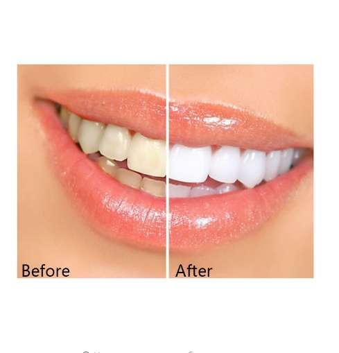 Элайзеры для отбеливания зубов в