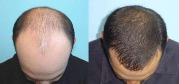 Пересадка волос в Бухаре (новая услуга в регионе)