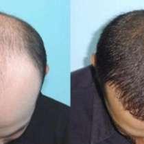 Пересадка волос в Бухаре (новая услуга в регионе), в г.Бухара